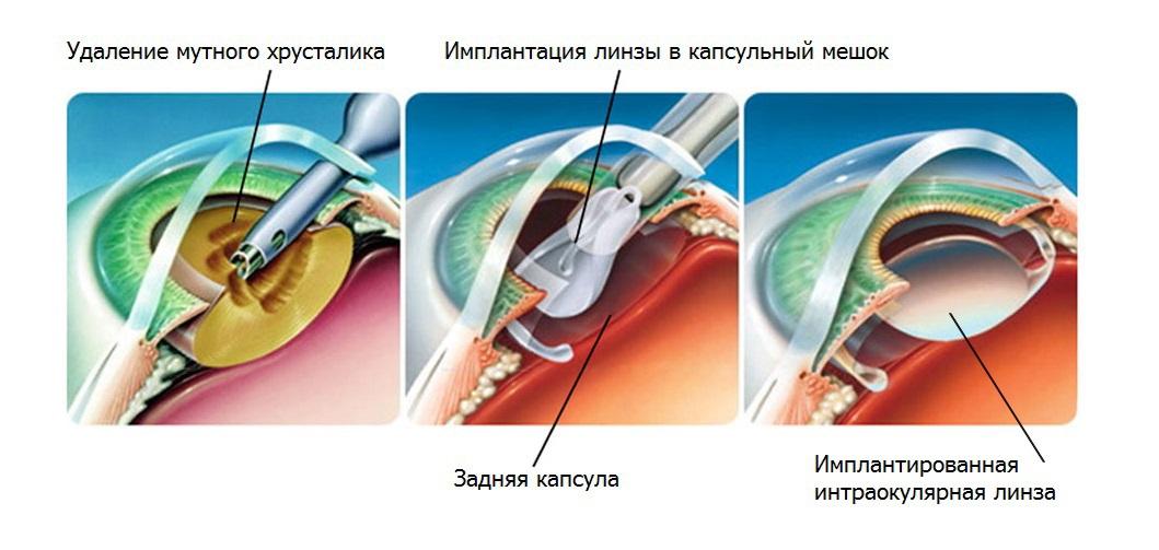 реабилитация после операции на катаракту